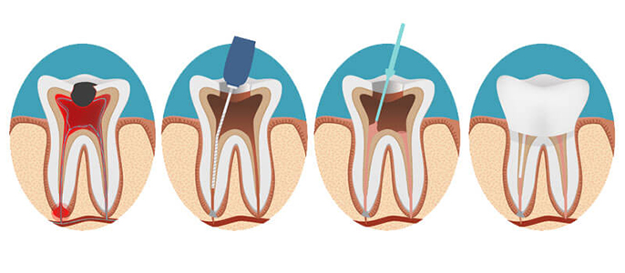 an illustration of tooth healing