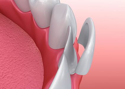 image of veneers applied to teeth