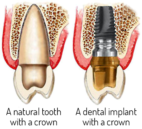 an illustration of a natural tooth and a dental implant