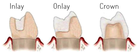 image of a tooth with inlay and onlay