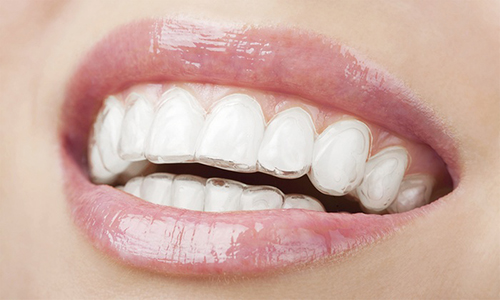image of nice smile white teeth