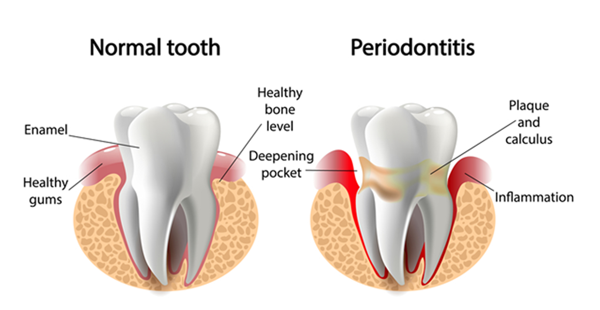 an illustration of a normal tooth and periodontitis