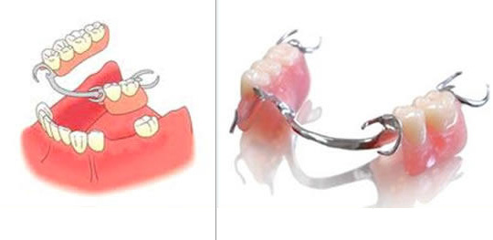 a photo and illustration of dentures